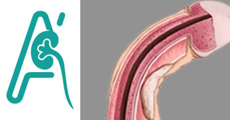 Χειρουργική αποκατάσταση των κάμψεων του πέους