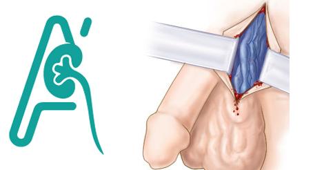 Πλαστική αποκατάσταση της κιρσοκήλης
