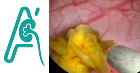 Κυστεολιθοτριψία