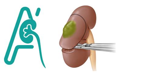 Νεφρεκτομή