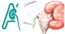 Πυελοπλαστική (Στένωση πυελουρητηρικής συμβολής)