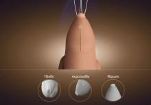 Μια γνωριμία με το γεννητικό σύστημα του άνδρα και τις παθήσεις του